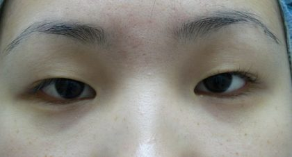 Asian Blepharoplasty (Eyelid Surgery) Before & After Patient #2070