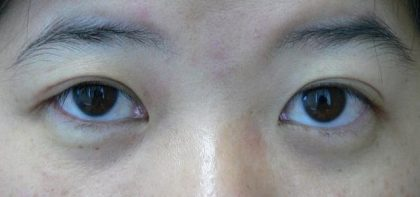 Asian Blepharoplasty (Eyelid Surgery) Before & After Patient #2067