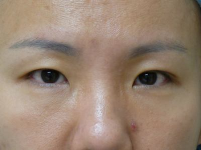 Asian Blepharoplasty (Eyelid Surgery) Before & After Patient #2062