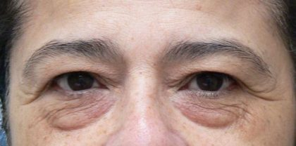 Blepharoplasty Before & After Patient #2102