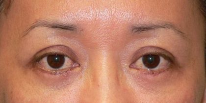 Blepharoplasty Before & After Patient #2099