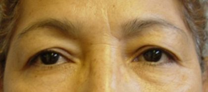 Blepharoplasty Before & After Patient #2096