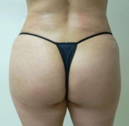 Brazilian Butt Lift Before & After Patient #1909