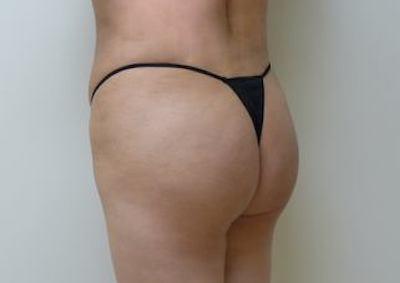 Brazilian Butt Lift Before & After Patient #1904