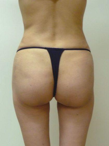 Brazilian Butt Lift Before & After Patient #1899