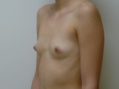 Breast Augmentation Before & After Patient #2205