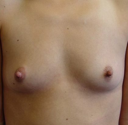Breast Augmentation Before & After Patient #2200