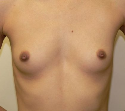 Breast Augmentation Before & After Patient #2195