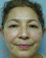 Facelift Before & After Patient #2041