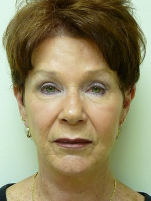Facelift Before & After Patient #2032