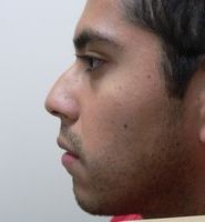 Rhinoplasty Before & After Patient #2054