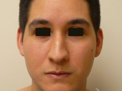 Rhinoplasty Before & After Patient #2044