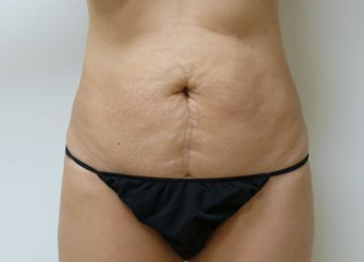 Tummy Tuck Before & After Patient #2027