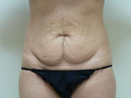Tummy Tuck Before & After Patient #2017