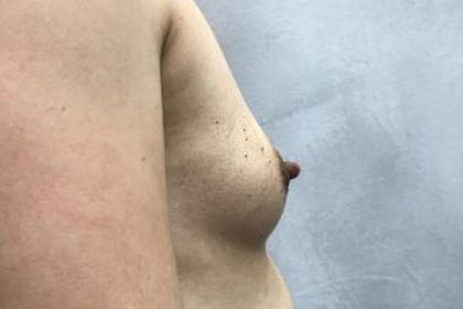 Breast Augmentation Before & After Patient #2332