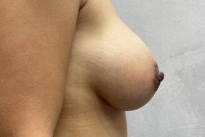 Breast Augmentation Before & After Patient #2357