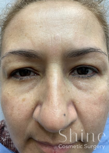 Blepharoplasty Before & After Patient #2442